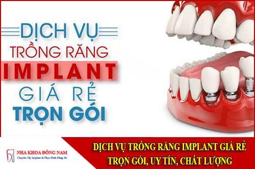 trồng răng implant giá rẻ