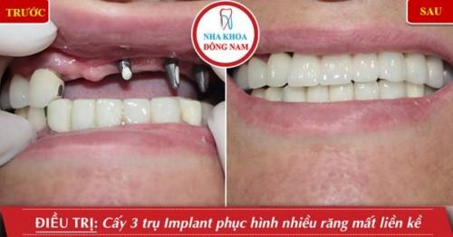 cấy 3 trụ implant phục hình răng mất