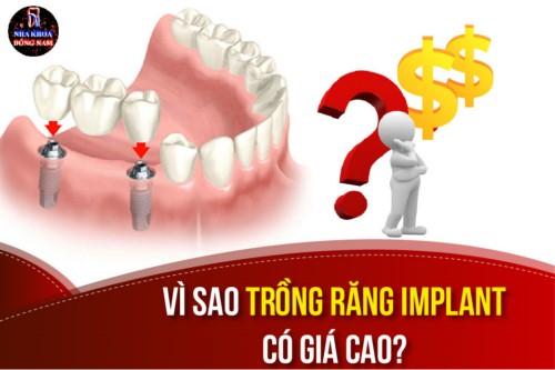 vì sao trồng răng implant lại có chi phí cao
