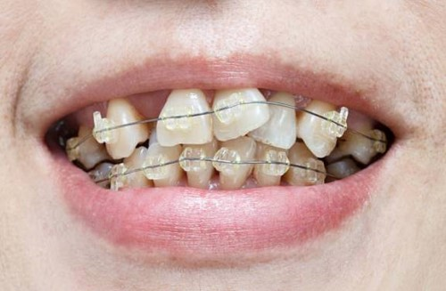 niềng răng cửa bị chìa