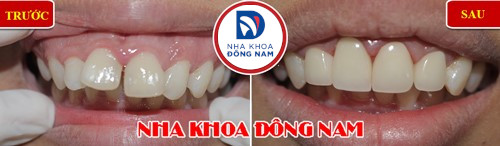 bọc sứ cho 2 răng cửa bị chìa