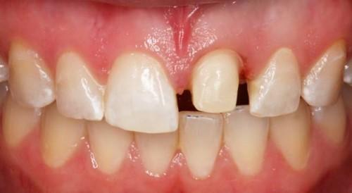 mài răng bọc sứ