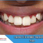 2 răng cửa to điều trị bằng cách nào
