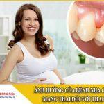 Ảnh hưởng của bệnh nha chu khi mang thai đối với thai nhi