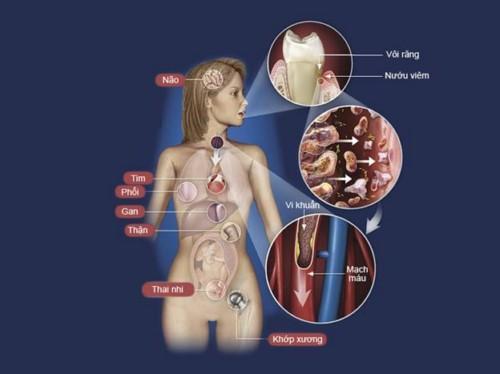 Ảnh hưởng của bệnh nha chu