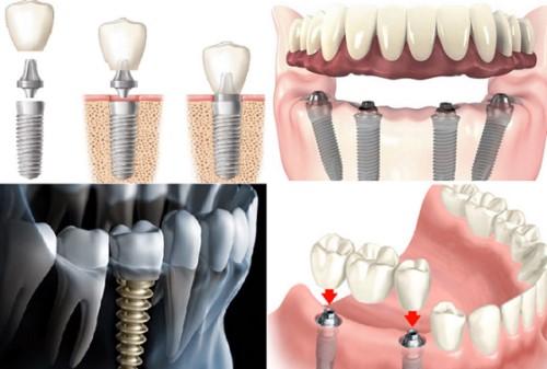 trồng răng giả bằng Implant