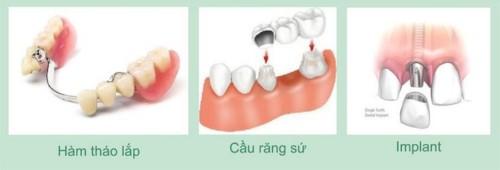 các phương pháp trồng răng giả