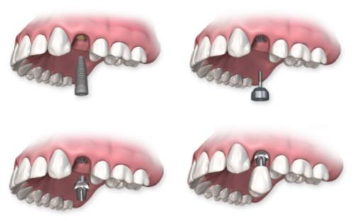 mô phỏng cấy ghép răng implant
