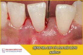 Bệnh nha chu có làm mất răng không
