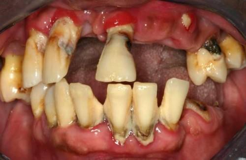 mất răng do viêm nha chu