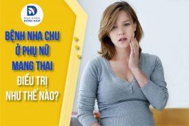 Bệnh nha chu ở phụ nữ mang thai