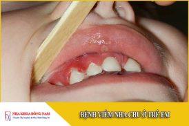 Bệnh viêm nha chu ở trẻ em