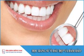 Bọc răng sứ ở đâu đẹp và đảm bảo