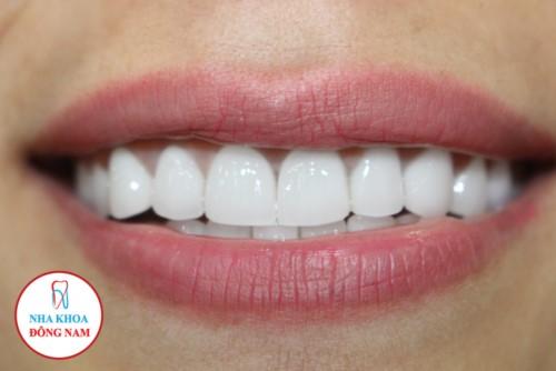 Bọc răng sứ tại nha khoa đông nam