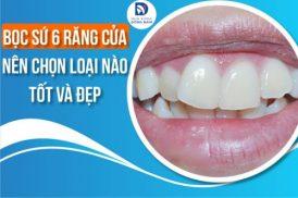 Bọc sứ 6 răng cửa nên chọn loại nào tốt và đẹp
