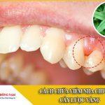 cách chữa viêm nha chu bằng cây lược vàng