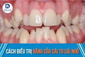 cách điều trị răng cửa cái to cái nhỏ