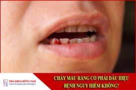 Chảy máu răng có phải dấu hiệu bệnh nguy hiểm không