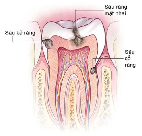 các dạng sâu răng