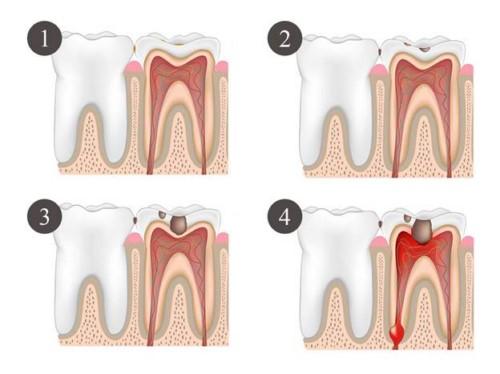 các giai đoạn phát triển của sâu răng
