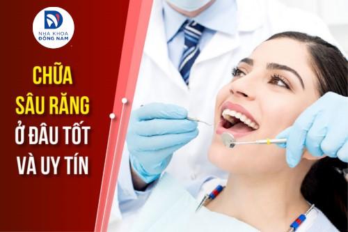 chữa sâu răng ở đâu tốt nhất tphcm