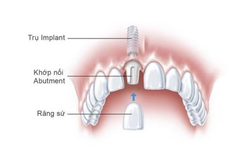 cấu tạo răng implant