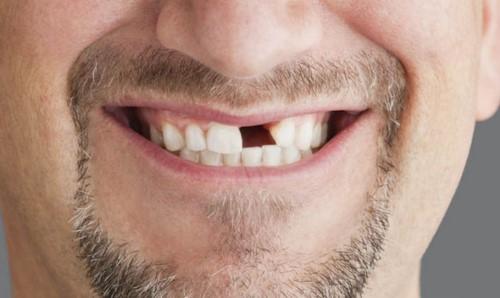 gãy răng cửa và biện pháp khắc phục