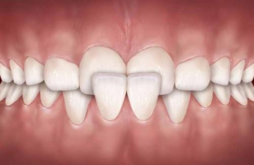 răng cửa bị quặp vào trong
