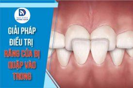 giải pháp điều trị hai răng cửa quặp vào trong