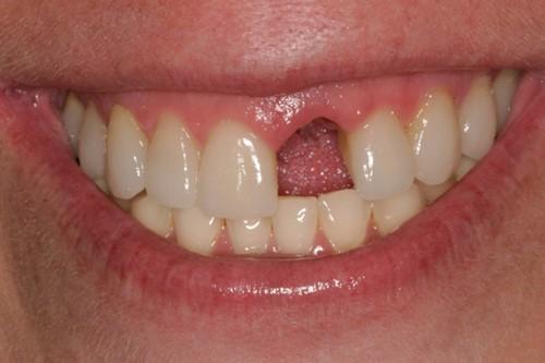 tác hại của việc mất răng cửa