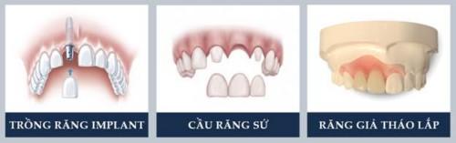 các phương pháp trồng răng cửa