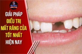 giải pháp điều trị mất răng cửa tốt nhất