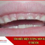 Tìm hiểu hiện tượng mòn răng sữa ở trẻ em