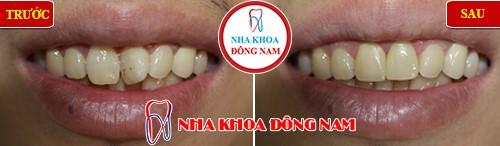 bọc sứ cho răng cửa bị chìa