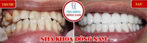 bọc sứ cho răng cửa bị quặp