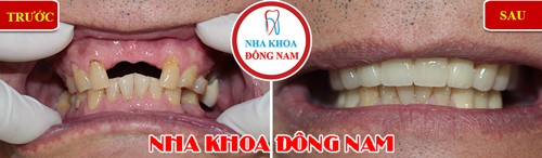 trồng răng sứ