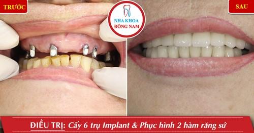 cấy răng implant hàm trên