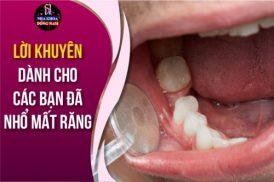 Lời khuyên dành cho các bạn đã Nhổ Mất Răng