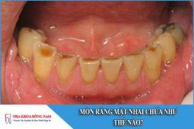 mòn răng mặt nhai chữa như thế nào