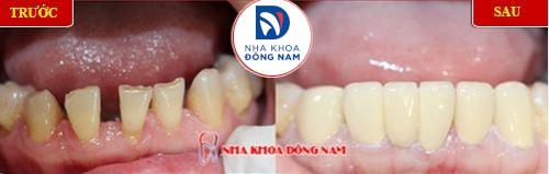 bọc sứ cho răng mòn mặt nhai