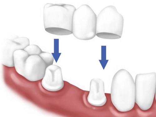trồng răng cấm bằng cầu sứ