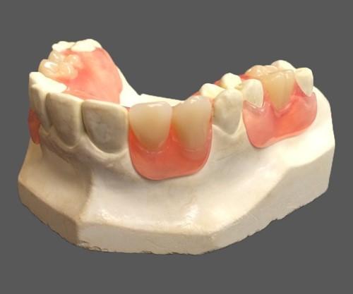 trồng răng cấm bằng răng tháo lắp