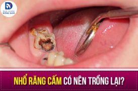 Nhổ răng cấm có nên trồng lại?