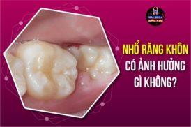 Nhổ răng khôn có ảnh hưởng gì không?