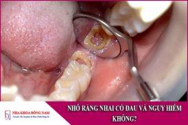 nhổ răng nhai có đau và nguy hiểm không