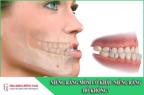 Niềng răng móm có khác niềng răng hô không bác sĩ