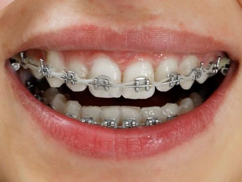 niềng răng mắc cài