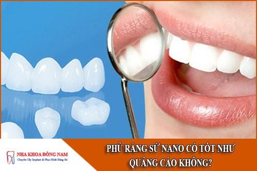 phủ răng sứ nano có tốt như quảng cáo không