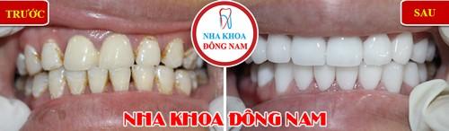 phủ răng răng bị ố vàng