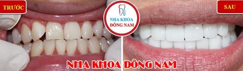 phủ răng sứ 2 hàm